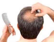 Від чого з`являється лисина на голові?