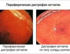 Периферична дистрофія сітківки ока