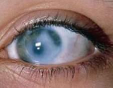 Пігментна дистрофія сітківки ока