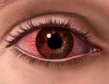 Допомога при алергічних кон`юнктивітах