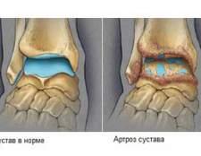 Причини, симптоми, ступеня і лікування артрозу гомілковостопного суглоба