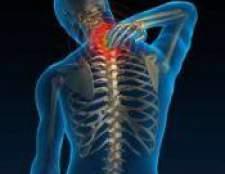 Шийний хондроз: лікування, симптоми