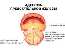 Симптоми аденоми простати і профілактика захворювання