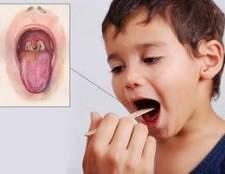 Симптоми і лікування дифтерії у дітей і дорослих