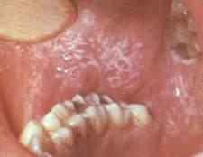 Симптоми і лікування червоного лишаю порожнини рота