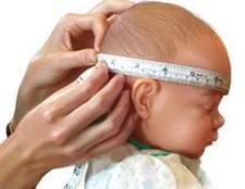 Симптоми і лікування водянки у новонароджених