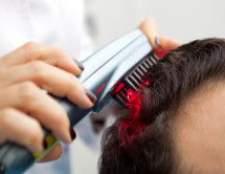 Чому у чоловіків часто випадає волосся на голові?