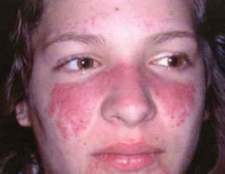 Туберкульоз шкіри