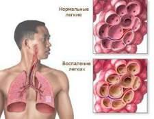 Запалення легенів: симптоми і лікування