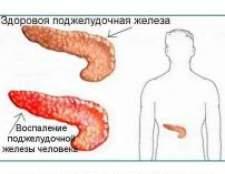 Запалення підшлункової залози - симптоми і лікування, дієта в домашніх умовах
