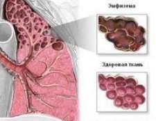 Захворювання легенів емфізема