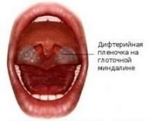 Захворювання ротоглотки: дифтерія, кандидоз, лептотрихоз ротоглотки